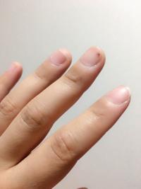 指に被弾した後の対策(女子編)