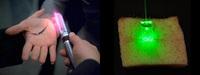 レーザー照射 15 分で傷が治癒する「スタートレック」スタイルの新技術 (PTB) が開発